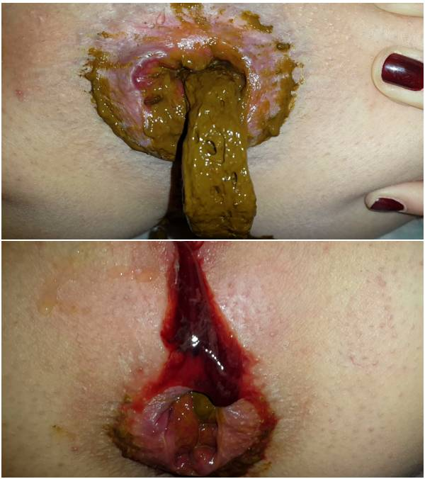 Anna Coprofield - Quickly Shit In The Morning And The Beginning Of Menstruation (diarrhea scat video)